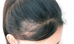 Hair Regrowth With AAPE Product