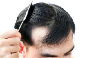 Hair-loss-and-its-problems